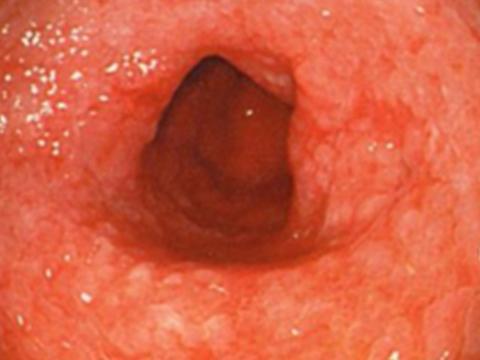 【画像】癌を伴う腸上皮化生