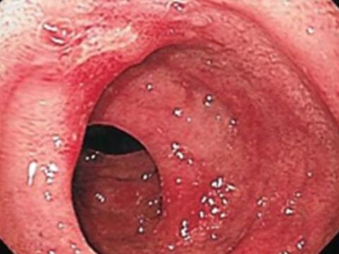 【画像】十二指腸潰瘍