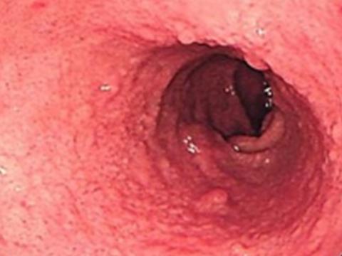 【画像】十二指腸ポリープ