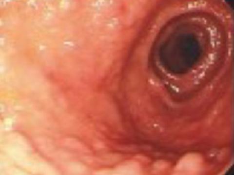 【画像】異所性胃粘膜