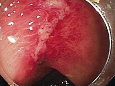 【画像】潰瘍性大腸炎