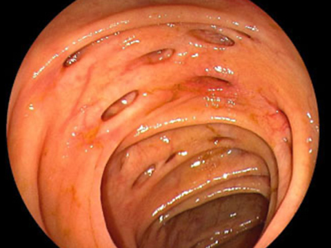 【画像】大腸憩室症