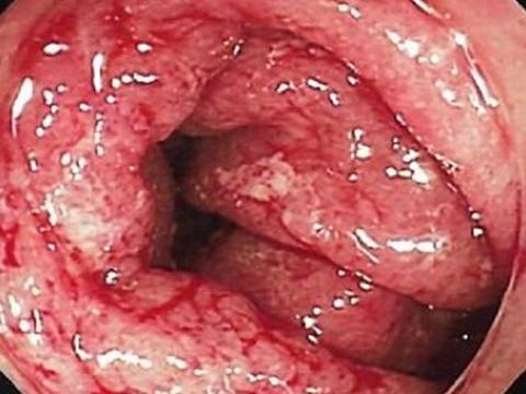 【画像】感染性腸炎
