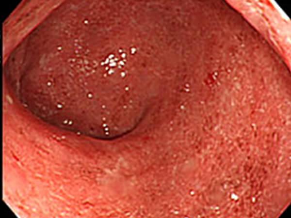 【画像】潰瘍性大腸炎の大腸内視鏡像
